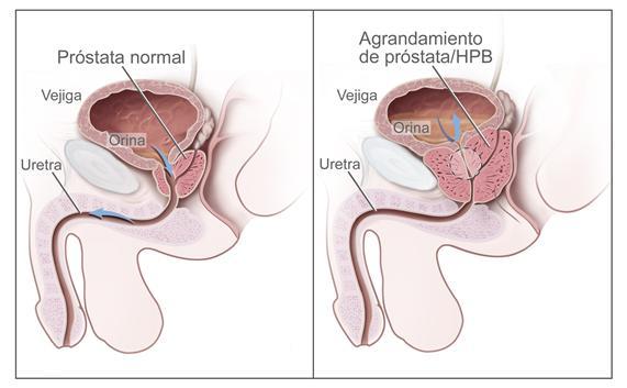 Cáncer de Próstata | Revista Opción Médica Uruguay