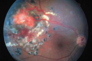 Hemangiomas capilares y mixtos